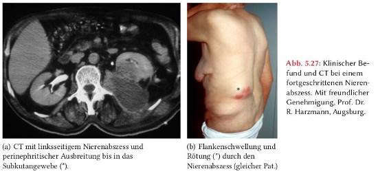 CT Abdomen und klinischer Befund bei linksseitigem Nierenabszess