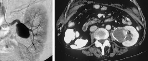 Abbildung CT und Angiographie eines Nierenarterienaneurysmas