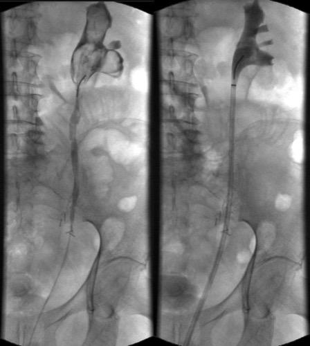 Abbildung Retrograde Pyelographie: Nierenbeckentamponade bei Makrohämaturie.