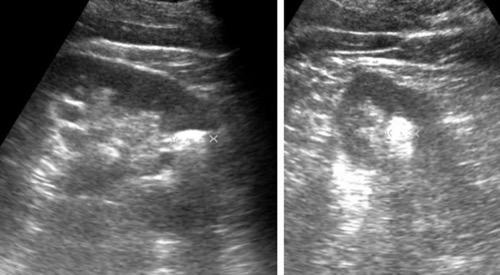 Sonographie Nierenstein Ultraschall