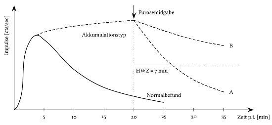Abbildung Nierenszintigraphie schematischer Kurvenverlauf