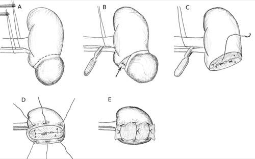 Abbildung Technik der Nierenteilresektion