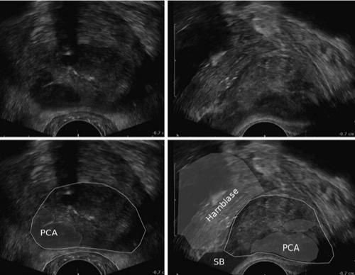 TRUS transrektaler Ultraschall der Prostata mit Prostatakarzinom