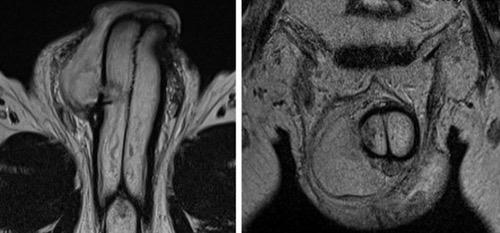 Abbildung MRT einer Penisfraktur