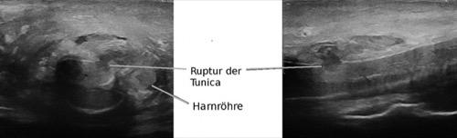 Abbildung Sonographie einer Penisfraktur