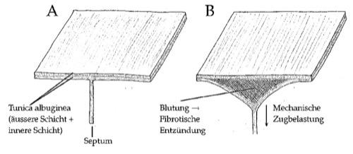 Abbildung Pathogenese der Induratio penis plastica durch Mikrotraumata