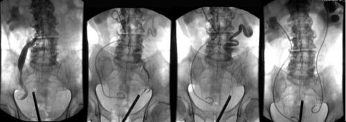 Abbildung Retrograde Pyelographie und beidseitige Harnleiterschienung bei postrenalem Nierenversagen aufgrund einer BPH: die beidseitige Hydronephrose wird mit DJ-Harnleiterschienen entlastet
