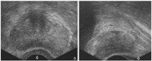 Transrektaler Ultraschall der Prostata vor Prostatabiopsie