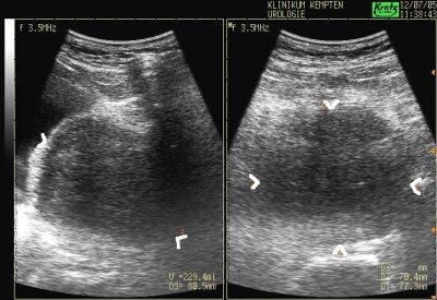 transabdominelle Messung der Prostatagröße mit der Sonographie