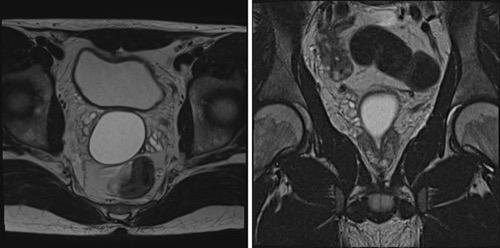 Abbildung Prostatazyste in der MRT
