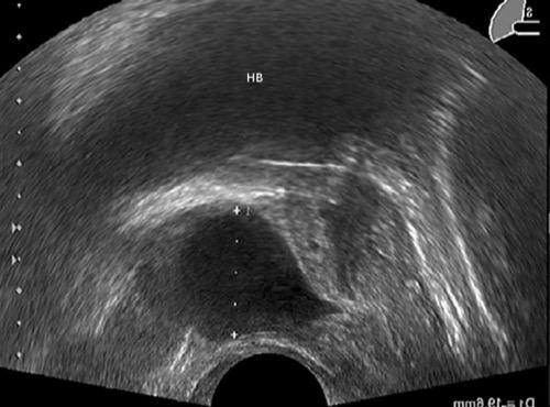 Transrektale Sonographie einer Prostatazyste