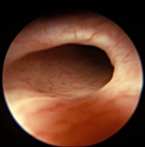 Abbildung Refluxives Ostium in der Zystoskopie