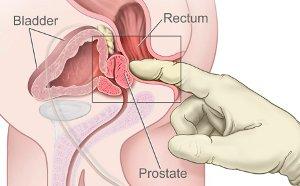 Abb. rektale Untersuchung mit Prostata