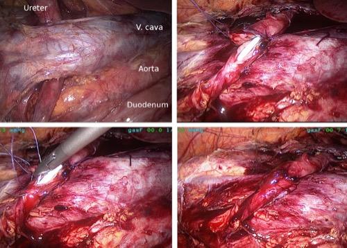 Abbildung Laparoskopische Ureteroureterostomie bei einem retrokavalen Harnleiter