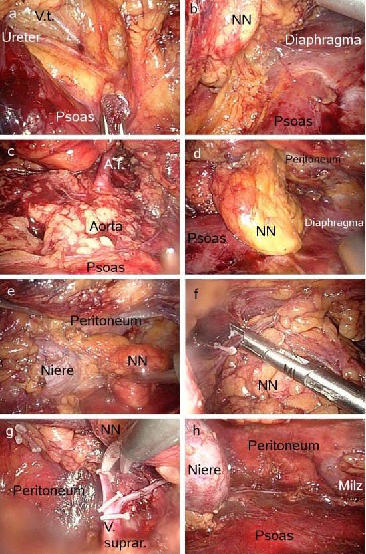 retroperitoneoskopische laparoskopische Adrenalektomie bei Nebennierentumor
