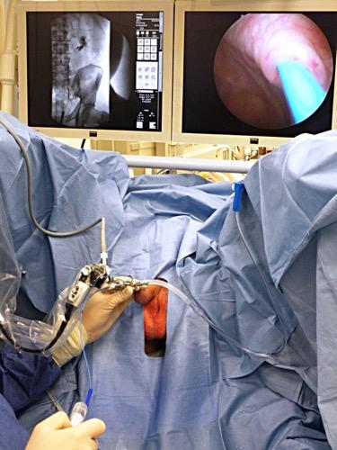 Abbildung Zystoskopie und retrograde Pyelographie auf moderner Röntgenanlage