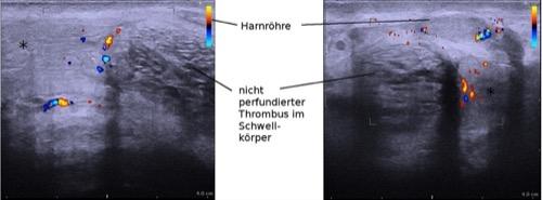 Perineale Dopplersonographie einer rechtsseitigen partiellen Schwellkörperthrombose