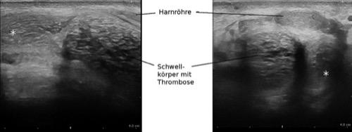 Perineale Sonographie einer rechtsseitigen partiellen Schwellkörperthrombose
