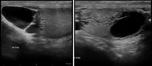 Abbildung Sonographie Skrotum: Spermatozele mit tubulärer Ektasie des Rete testis