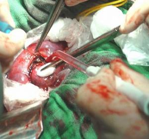 Abbildung operative Therapie des Nierenzellkarzinoms