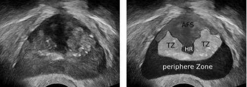 TRUS transrektale Ultraschall anteriores fibromuskuläres Stroma (AFS), periphere Zone, Übergangszone (TZ) und Harnröhre (HR)