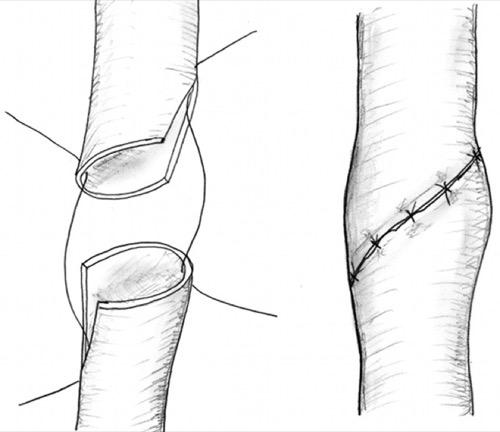Ureteroureterostomie Harnleiterverletzung Harnleiterstriktur