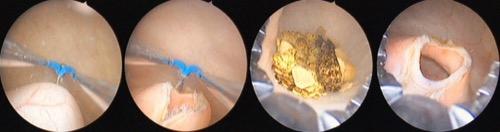 Abbildung transurethrale Ureterozelenschlitzung und Uretersteinbergung