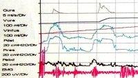 Kurvenverlauf Urodynamik