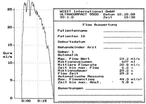Normalbefund einer Harnstrahlmessung (Uroflow)