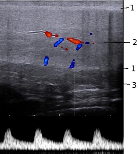 Abbildung Dopplersonographie des Penis