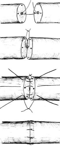Abbildung: operative Technik der Vasovasostomie