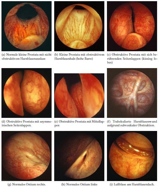 Zystoskopie: Blasenspiegelung – www.urologielehrbuch.de