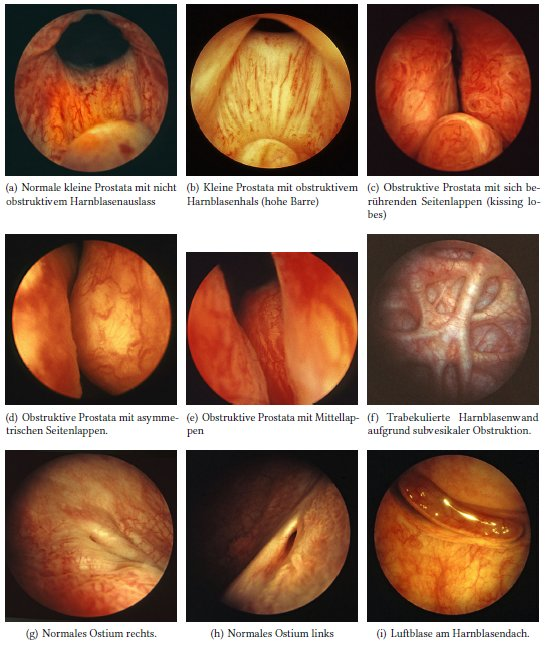 Abbildungen Normalbefunde der Zystoskopie Tafel 2